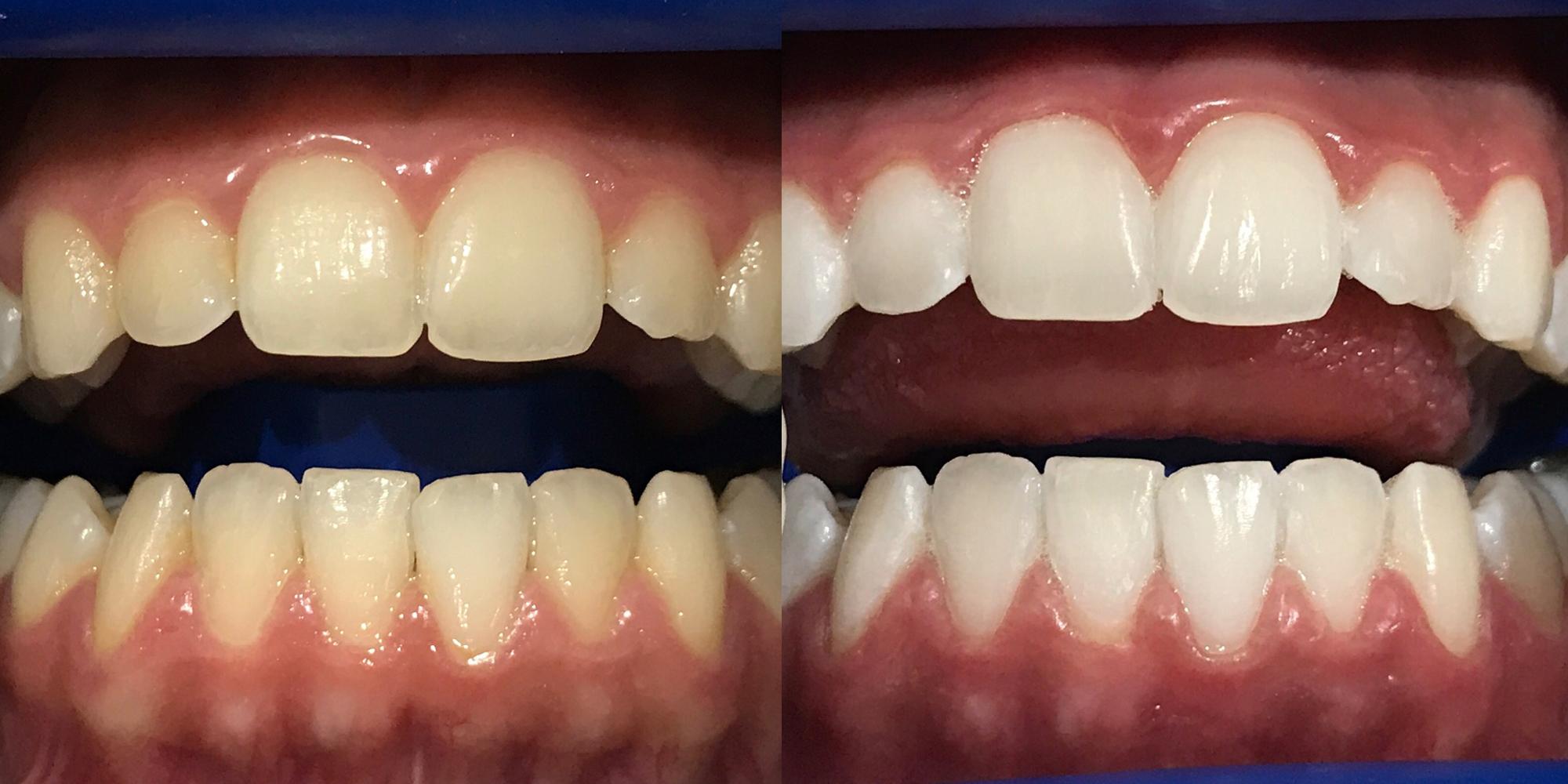 Teeth Whitening Long Jetty Teeth Whitening Central Coast The