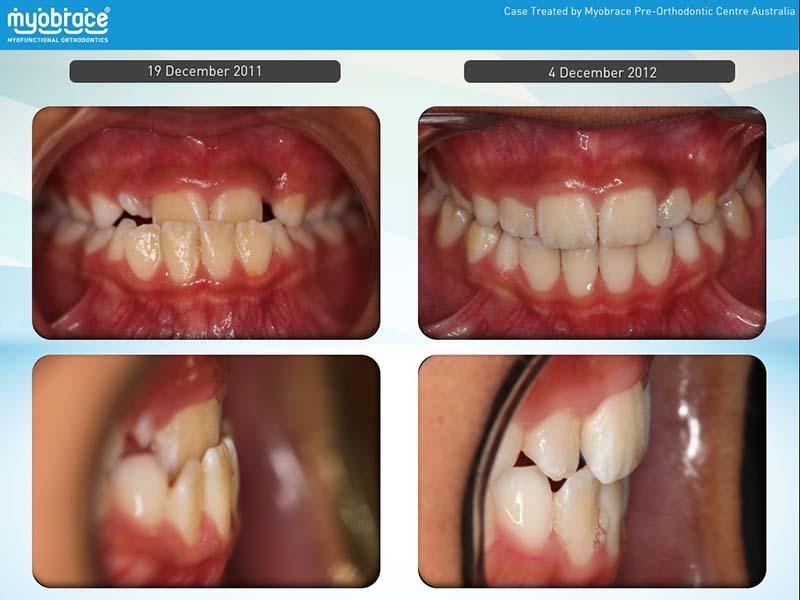Luminous Dentistry, Myobrace